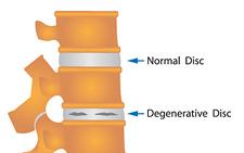 degenerative-disc