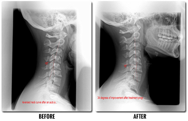 before and after auto accident